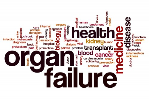 organ failure attorney